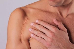 Rolle der Faszien in der Behandlung von Narben und Adhäsionen